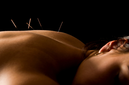 Acupuncture and Dry needling in Newcastle